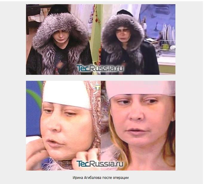 Ирина до и после