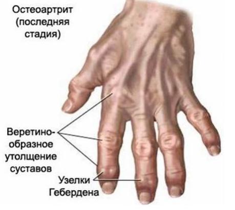 bolezni-sustavov2 (459x411, 39Kb)