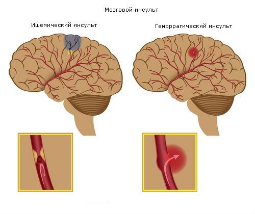 Последствия инсульта головного мозга (500x420, 36Kb)
