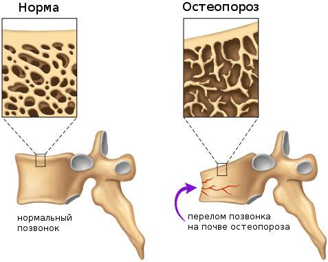 остеопороз (477x381, 36Kb)