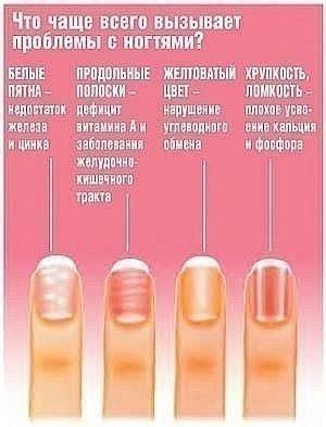 1430510029_zdorov_e_v_kartinkah_nogti (300x393, 22Kb)