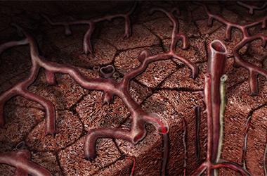 Первые признаки цирроза печени (380x250, 57Kb)