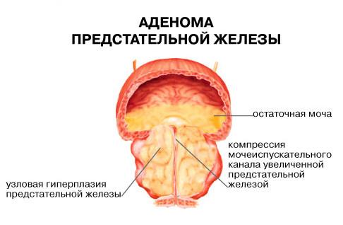 Простата предстательной железы операция