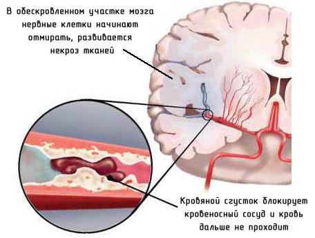 ишемический-инсульт0 (456x345, 33Kb)