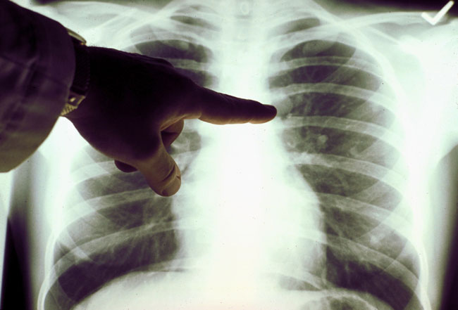 20080527_lung_cancer_33 (650x441, 41Kb)