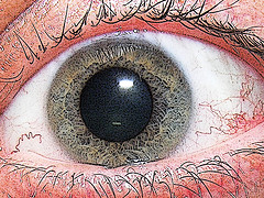 eye (240x180, 34Kb)