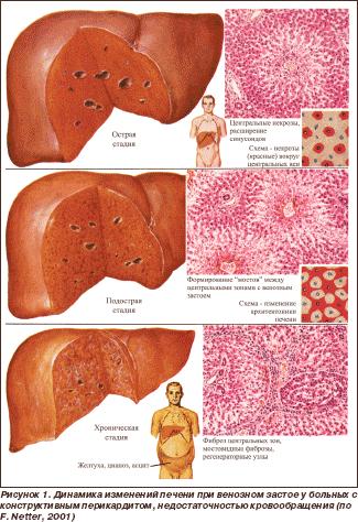 Аутоиммунные антитела к печени