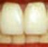 Зубы (71x69, 13Kb)