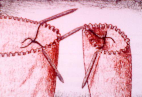 Присоединение рукава (500x341, 271Kb)