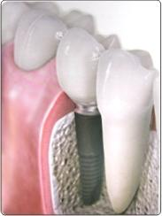 implant_ (183x244, 6Kb)