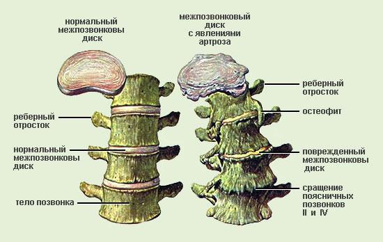 В зависимости от того, какой сегмент позвоночника был поражён, выделяют следующие виды остеохондроза.