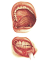 stomatitis(1) (100x121, 22Kb)