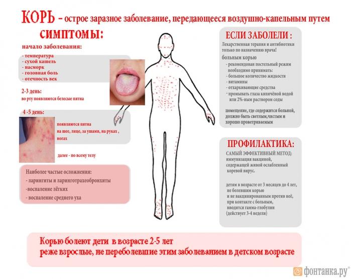 корь симптомы у детей и фото