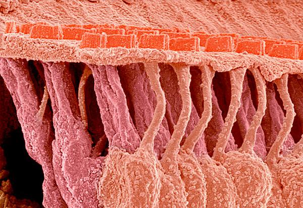 C0097878-Sensory_hair_cells_in_ear,_SEM-SPL (600x412, 550Kb)