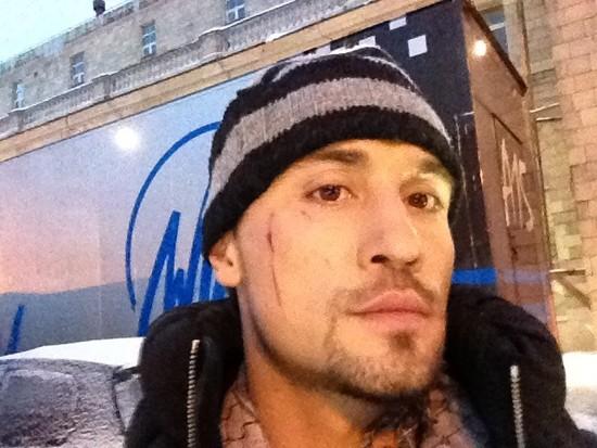 Дима Билан повредил лицо