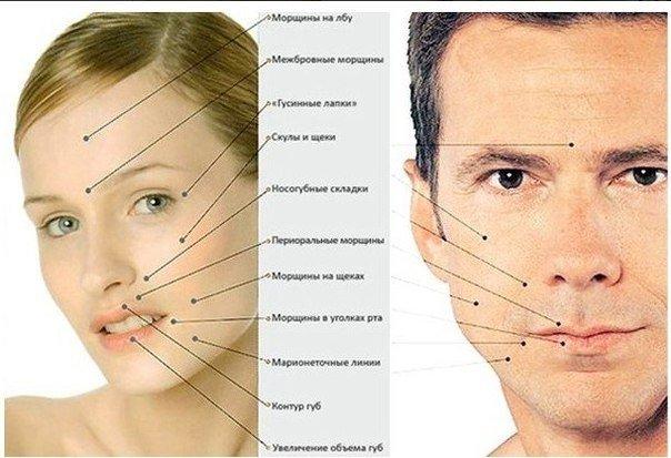 О чем говорят морщины на лице (604x413, 56Kb)