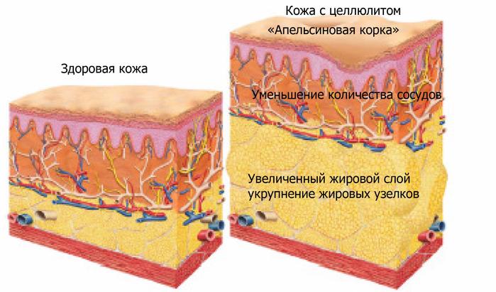 целлюлит (700x411, 325Kb)