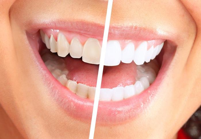 otbelivanie-zubov-beyond-07 (700x483, 85Kb)