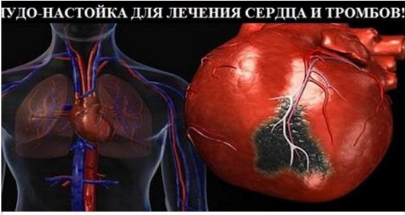129112778_Bezuymyannuyy (589x313, 57Kb)