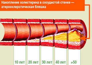 Ateroskleroticheskaya-blyashka (320x227, 27Kb)