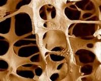 hrupkie-kosti (200x160, 13Kb)