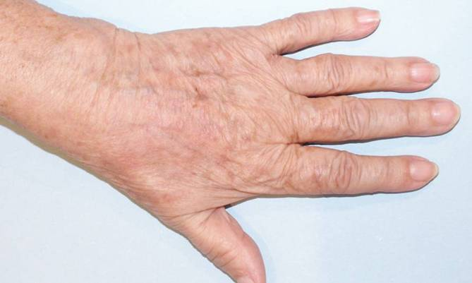 hand_after_1 (669x401, 23Kb)
