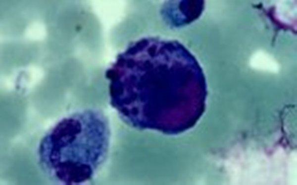 Цитомегаловирус (600x375, 21Kb)