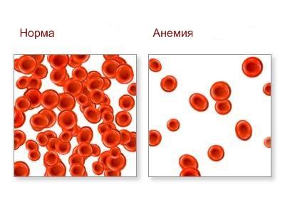 Анемия-у-детей.-Причины-симптомы-течене-лечение-и-профилактика-анемии-у-детей. (400x277, 56Kb)