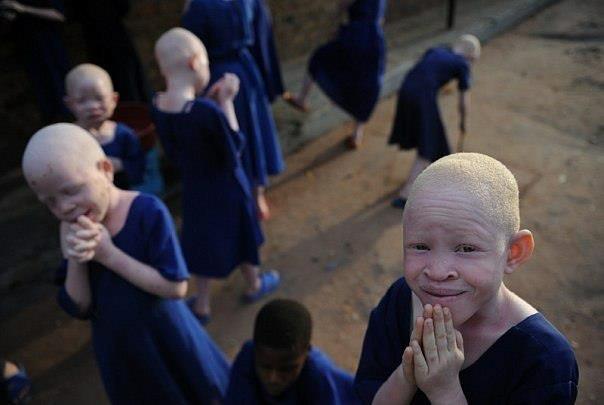 Негритята - альбиносы (604x405, 27Kb)