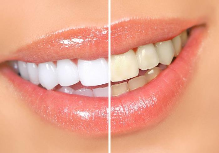 otbelivanie-zubov3 (700x488, 66Kb)