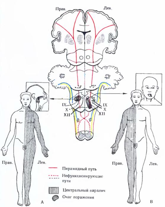 Синдром Мозжечковый
