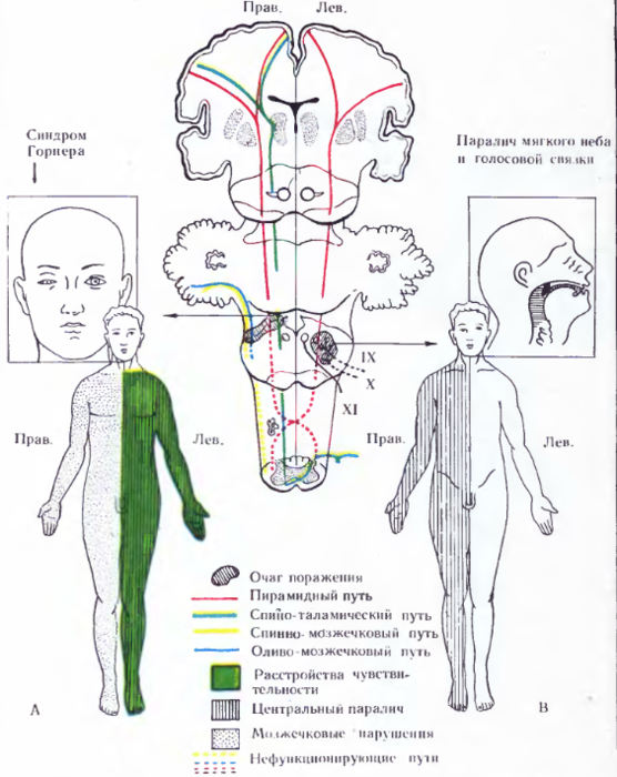 Синдром Мозжечковый фото