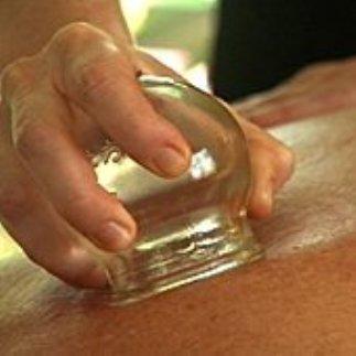 Баночный массаж против целлюлита/4310316_banochnii_massaj_protiv_cellulita (323x323, 16Kb)