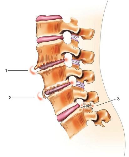 специальный комплекс упражнений при остеохондрозе и массаж.  Прочитать остальную часть записи.