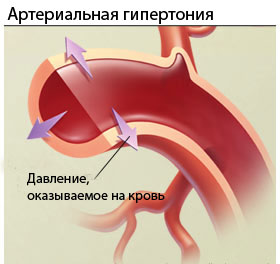 4907394_bloodpressure (280x264, 15Kb)
