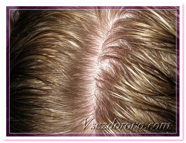 dry-shampoo-09 (601x461, 128Kb)