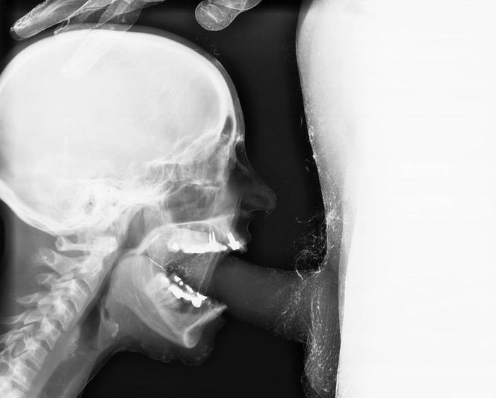 Секс рентгены
