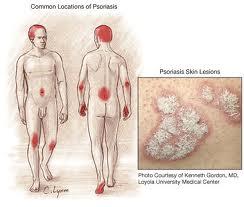 Существует широкий спектр лечения псориаза в. Еще одним действенным методом лечения является электрофорез.