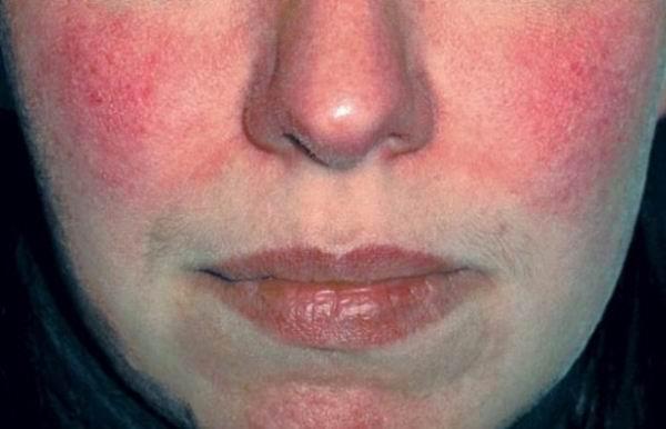 Подкожные паразиты человека симптомы лечение фото