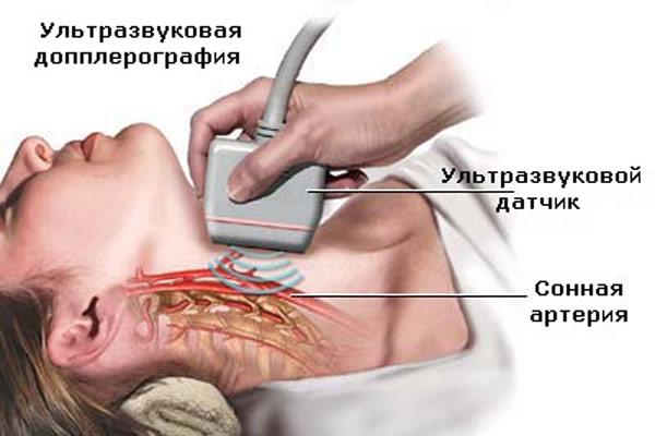Ультразвуковая допплерография сосудов шеи (600x400, 41Kb)