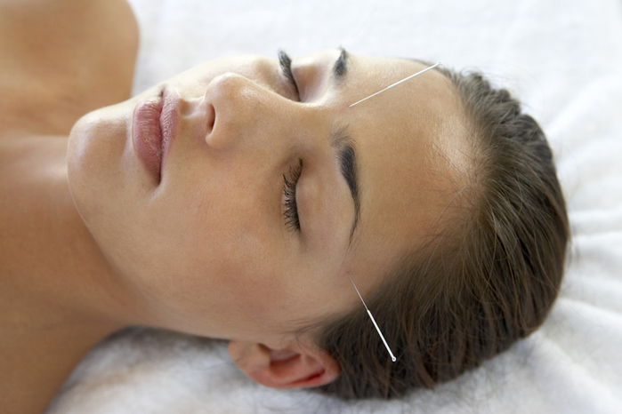 acupuncture-and-migraines (700x466, 148Kb)