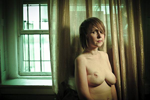 Коллекция шокирующих фотографий жертв рака молочной железы после операции