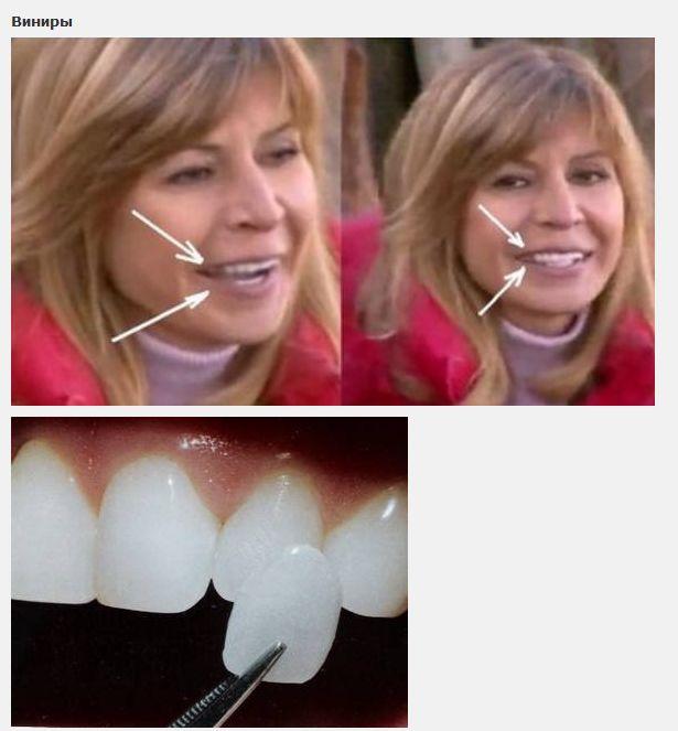 виниры на зубы на сколько лет