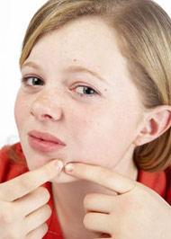 воспаление-на-лице-прыщи-и-их-лечение (190x266, 13Kb)