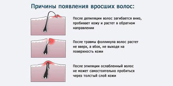 http://img1.liveinternet.ru/images/attach/c/7/124/782/124782013_1441099555_Kak_izbavit_sya_ot_vrosshih_volos.jpg