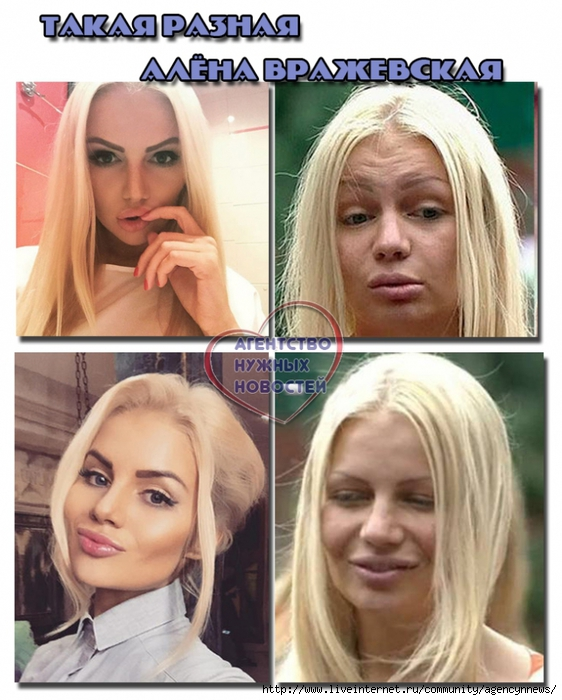 алена вражеская фото до и после пластики