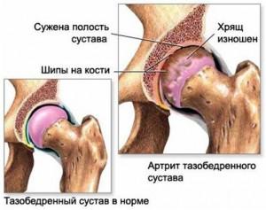artrit-300x237 (300x237, 24Kb)