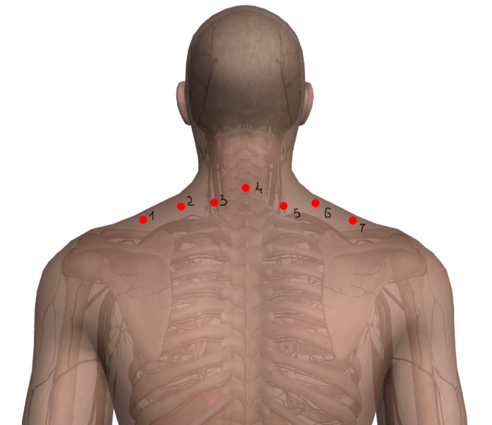гирудотерапия остеохондроз грыжи