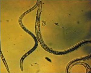 ocisenie-organizma-ot-parazitov (300x240, 10Kb)