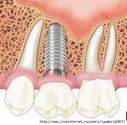 зубы1 (410x402, 76Kb)